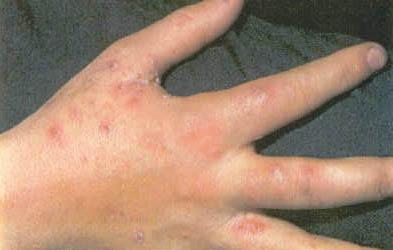 صور سبب ظهور حبوب صغيرة في اليد