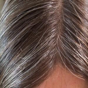 صور شعرة بيضاء طويلة في الجسم