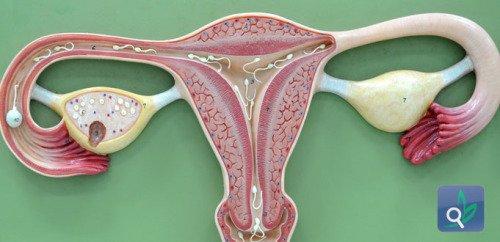 صور لحمية عنق الرحم والنزيف