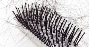 صور علاقة العادة السرية بتساقط الشعر