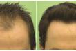 بالصور مركز جوفا لزراعة الشعر 20160908 53 1 110x75