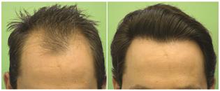 صور مركز جوفا لزراعة الشعر