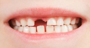 صورة متى تسقط اسنان الاطفال البنية