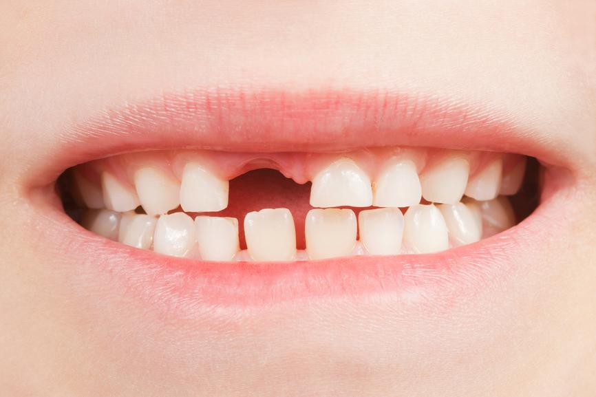 بالصور متى تسقط اسنان الاطفال البنية 20160909 4237