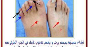 تنميل في جلد القدم