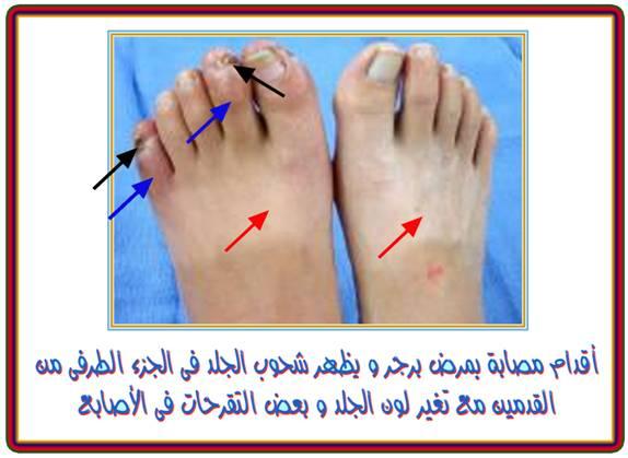 صورة تنميل في جلد القدم