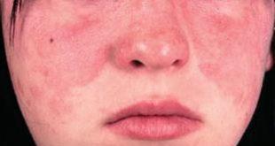التهابات جلد الوجه