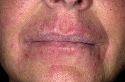 صور التهابات البشرة وعلاجها
