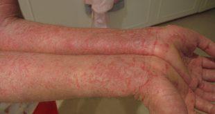 صورة علاج الحبوب الحمراء في الجسم