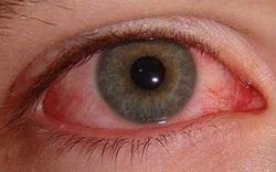 اعاني من الم في العين اليسرى