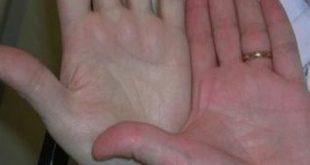 علاج الانيميا الحادة