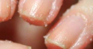 صور كيفية علاج تقشر الاصابع