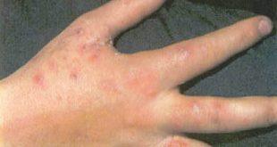 حبوب صغيرة تحت الجلد في اليد