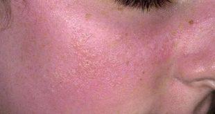 احمرار الجلد مع حكة