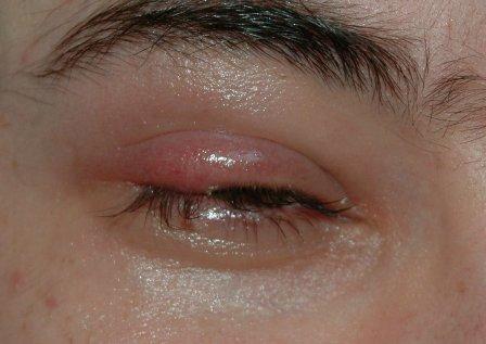 صور التهاب الاكياس الدهنية