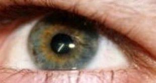 صورة حساسية انتفاخ العين