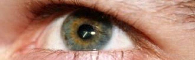 صور حساسية انتفاخ العين