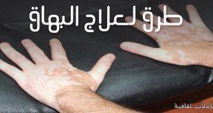 صور علاج البهاق بالاعشاب جابر القحطاني