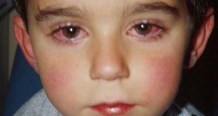 صور احمرار العين عند الاطفال