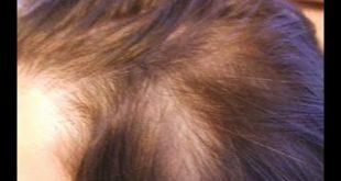 وصفه لتنيت الشعر