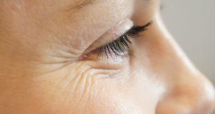 صور ازالة التجاعيد حول العينين