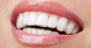 صورة تغليف الاسنان في الجزائر