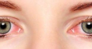صور العين اليمنى فيها احمرار