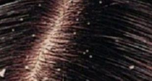 بالصور علاج قشرة الشعر 20160920 3070 1 310x165