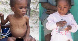 صورة سوء التغذية عند الاطفال والامراض الناتجة عنه