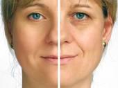 كيفية ازالة التجاعيد من الوجه