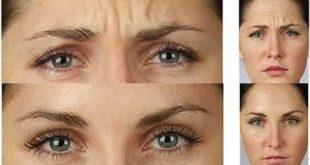 اضرار وفوائد حقن الوجه بالفيلر