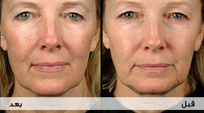 صور اضرار وفوائد حقن الوجه بالفيلر